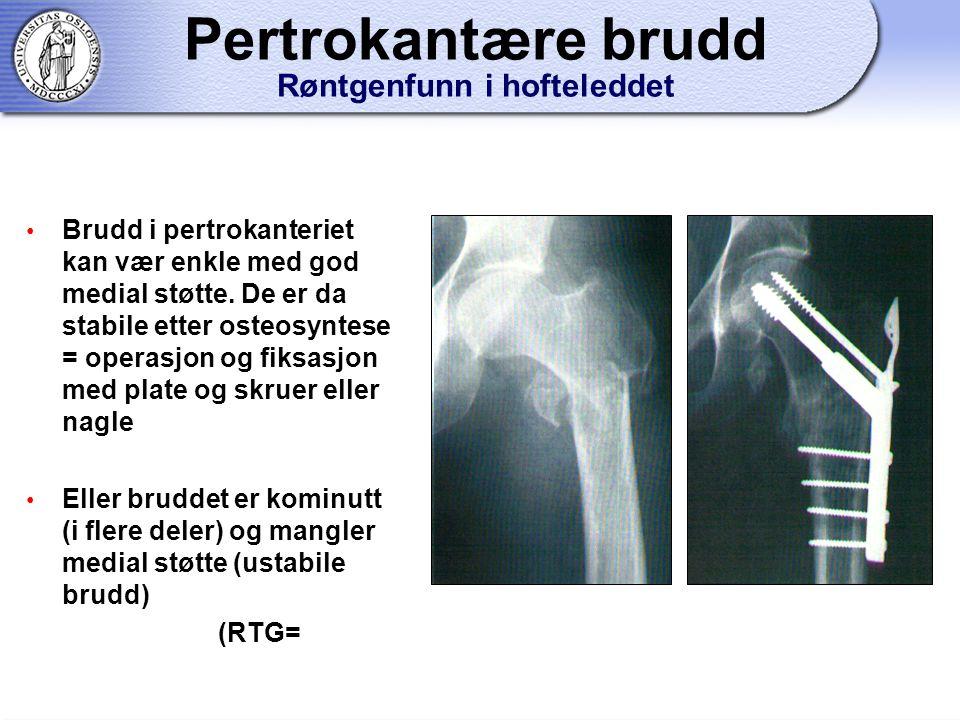 Pertrokantære brudd Røntgenfunn i hofteleddet
