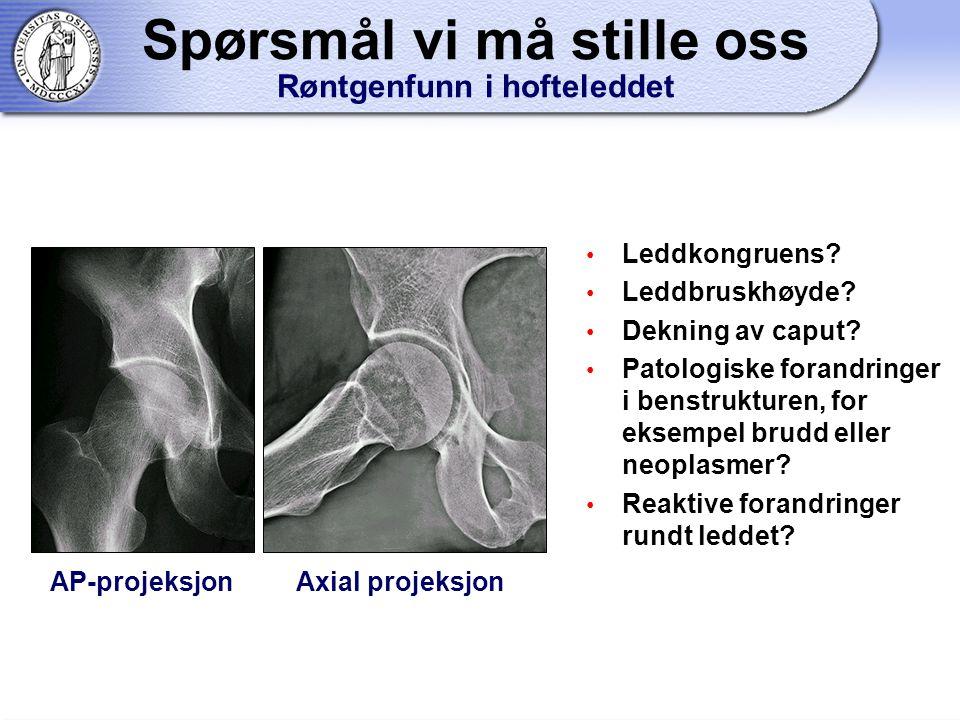 Spørsmål vi må stille oss Røntgenfunn i hofteleddet