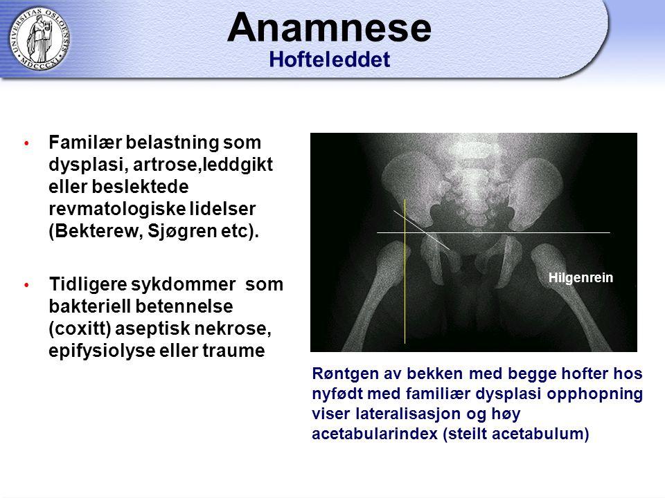 Anamnese Hofteleddet Familær belastning som dysplasi, artrose,leddgikt eller beslektede revmatologiske lidelser (Bekterew, Sjøgren etc).