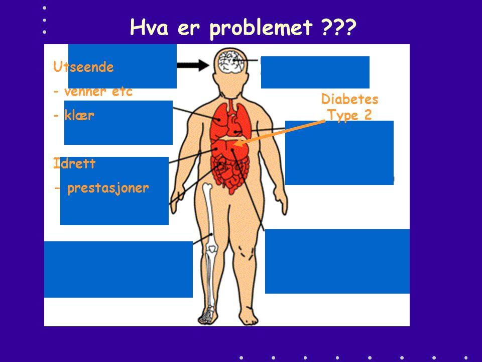 Hva er problemet Utseende venner etc klær Diabetes Type 2 Idrett