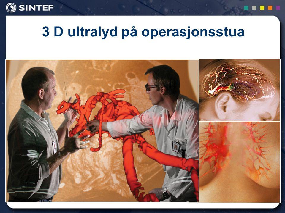 3 D ultralyd på operasjonsstua