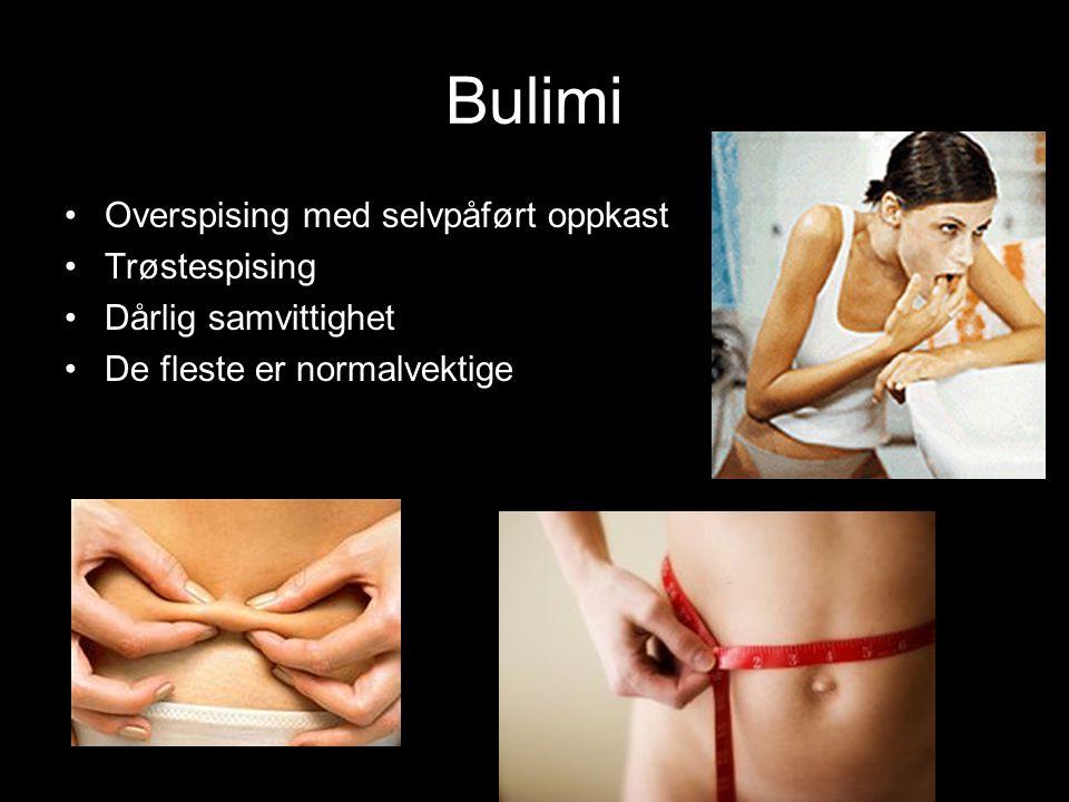 Bulimi Overspising med selvpåført oppkast Trøstespising