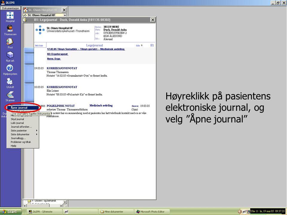 Høyreklikk på pasientens elektroniske journal, og velg Åpne journal