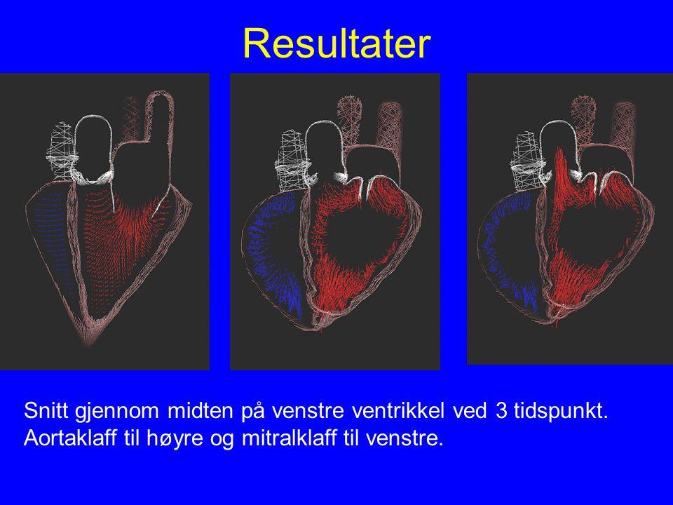 Resultater Snitt gjennom midten på venstre ventrikkel ved 3 tidspunkt.