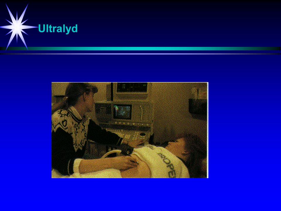 Ultralyd Ultralyd-undersøkelse i forbindelse med svangerskap.