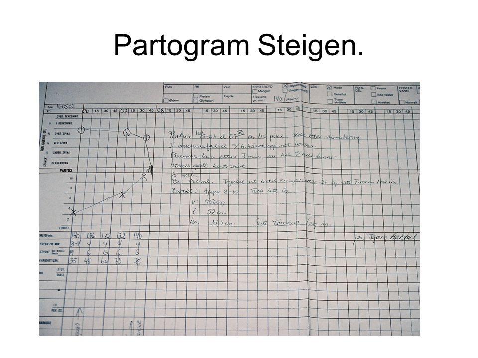 Partogram Steigen.