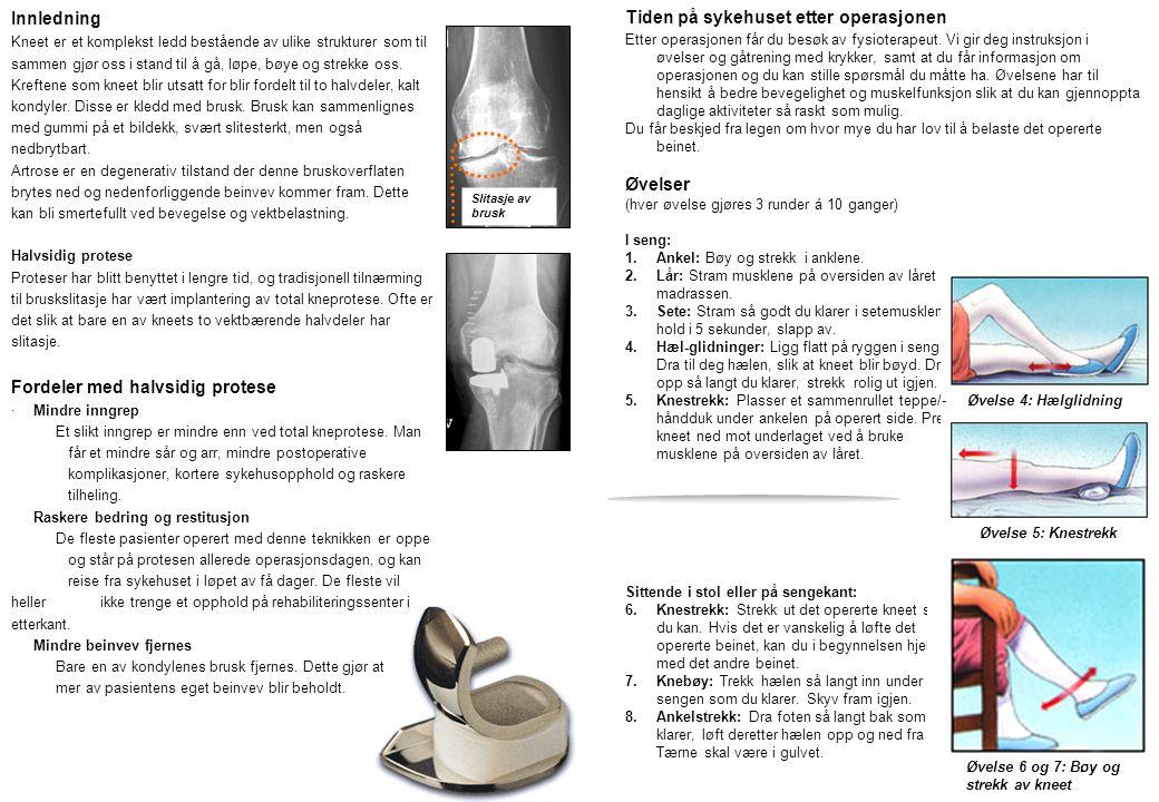 Fordeler med halvsidig protese Tiden på sykehuset etter operasjonen