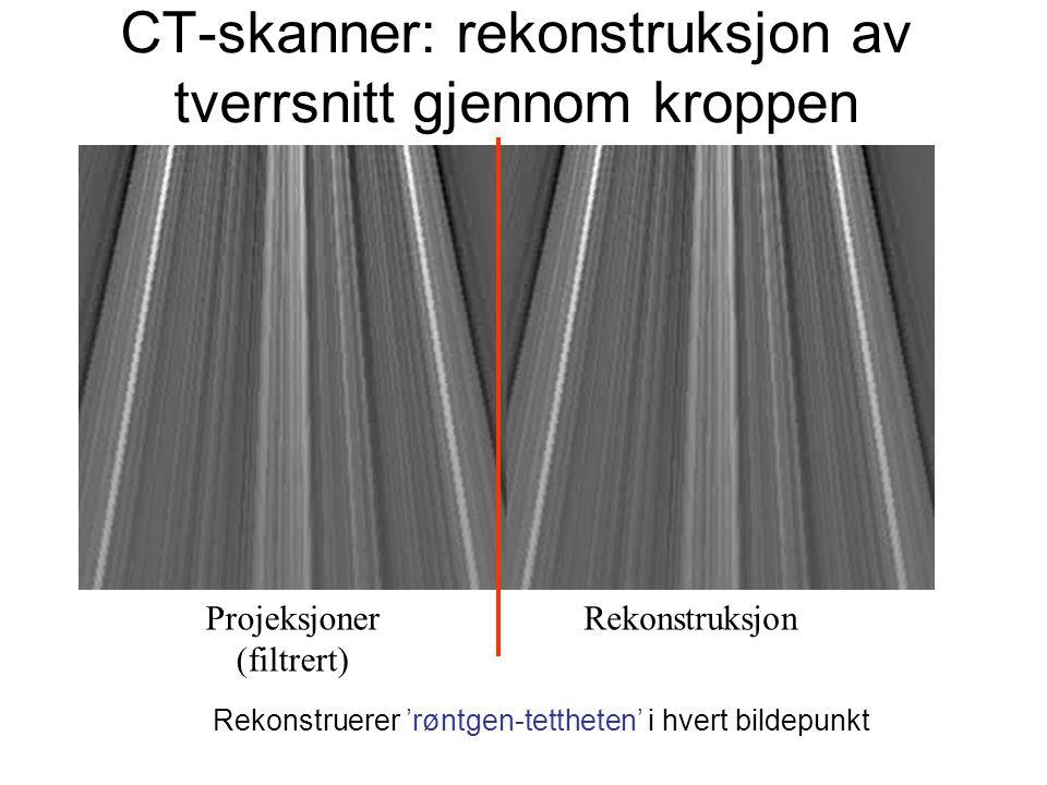 CT-skanner: rekonstruksjon av tverrsnitt gjennom kroppen