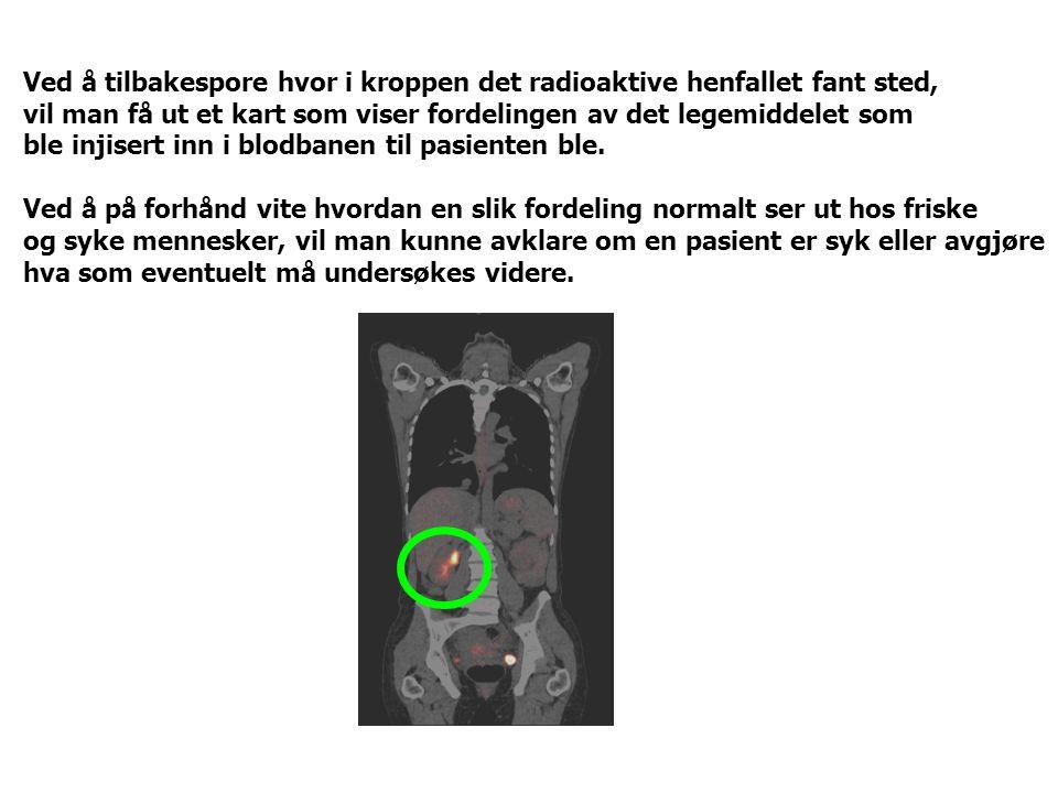 Ved å tilbakespore hvor i kroppen det radioaktive henfallet fant sted,