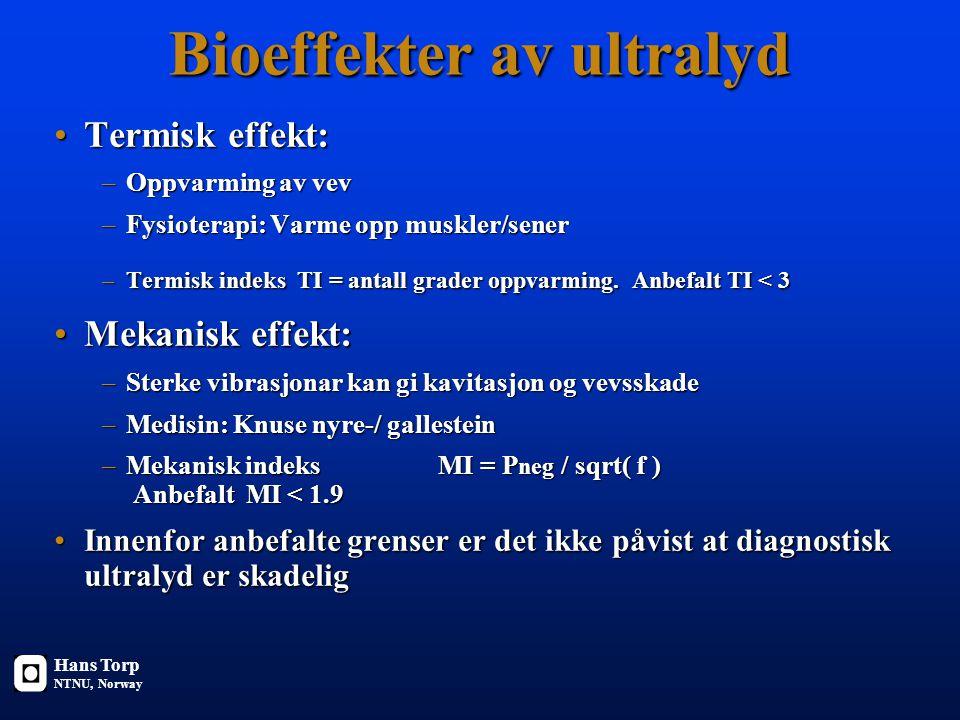 Bioeffekter av ultralyd