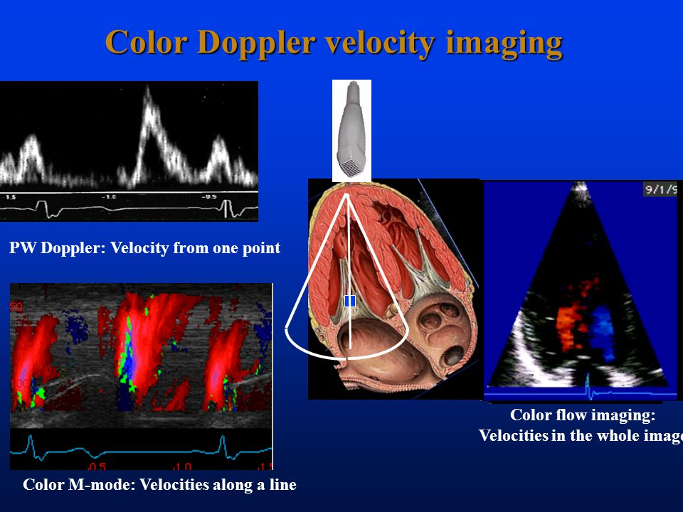 Color Doppler velocity imaging