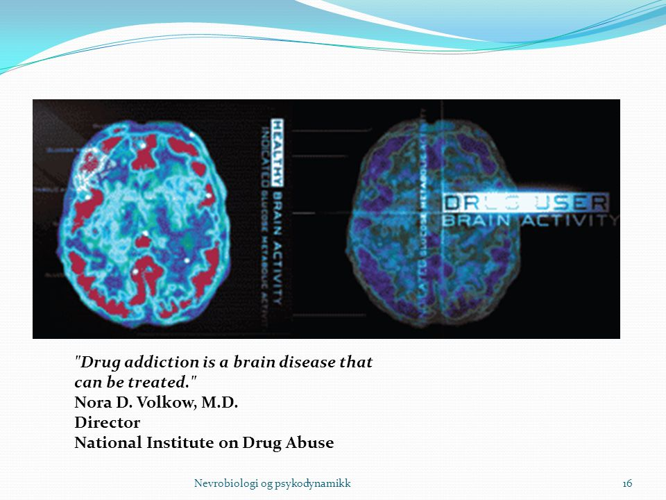 Drug addiction is a brain disease that can be treated. Nora D