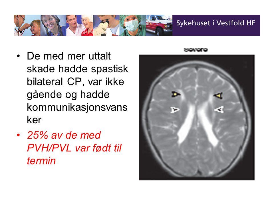 25% av de med PVH/PVL var født til termin