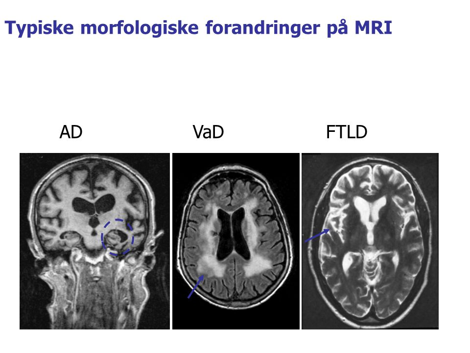 Typiske morfologiske forandringer på MRI