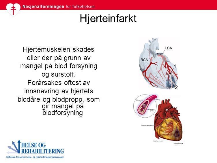 Hjerteinfarkt Hjertemuskelen skades eller dør på grunn av