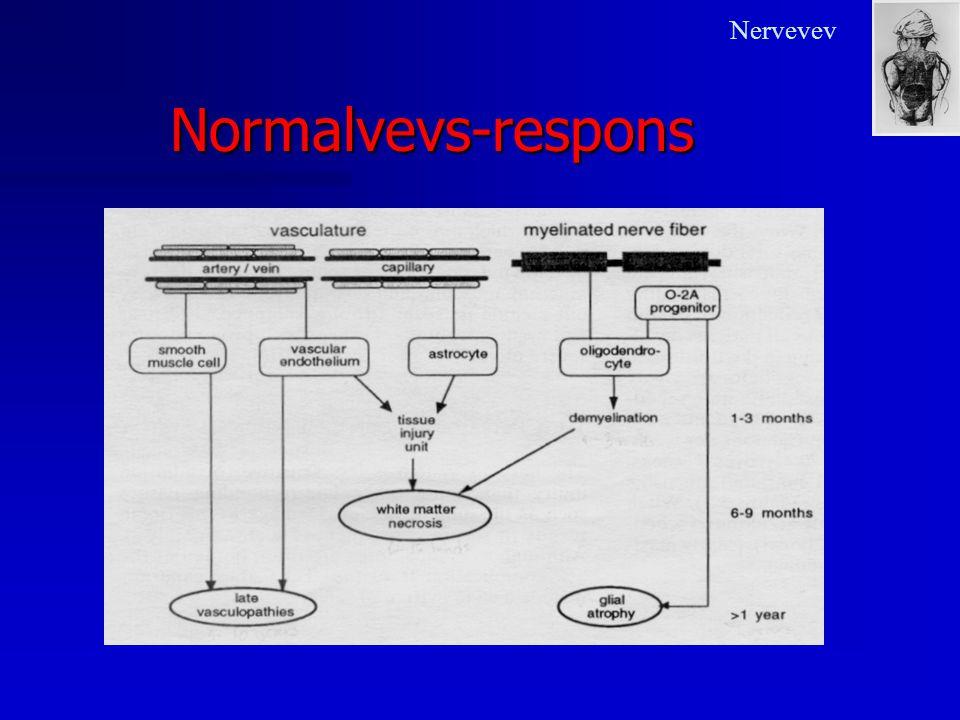 Nervevev Normalvevs-respons