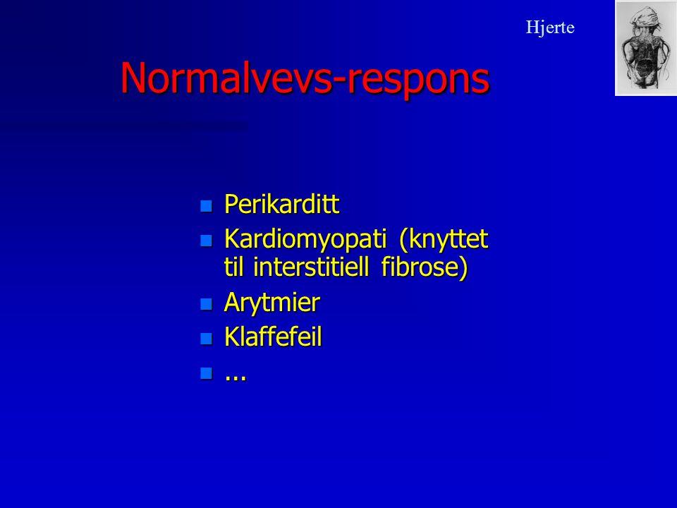 Normalvevs-respons Perikarditt