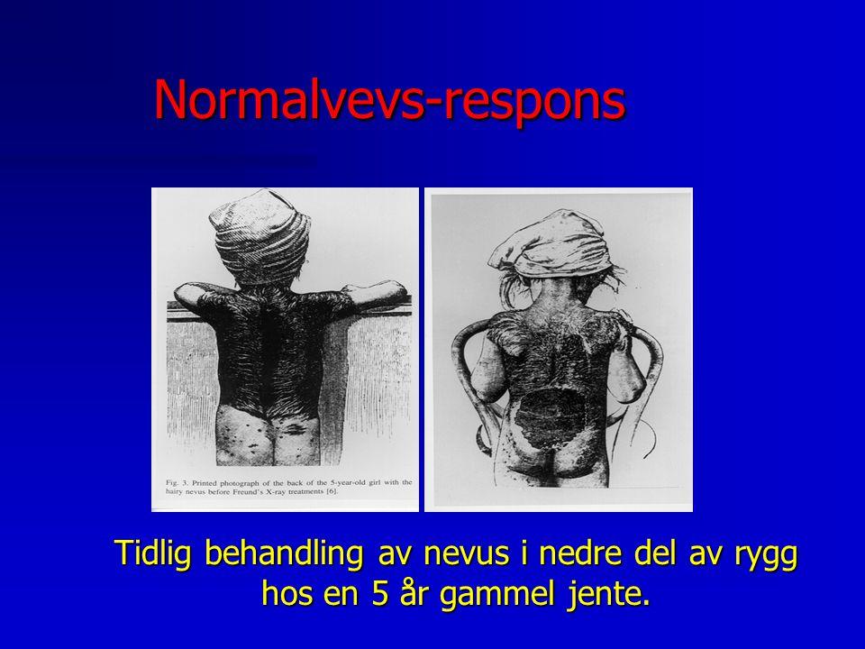 Normalvevs-respons Tidlig behandling av nevus i nedre del av rygg hos en 5 år gammel jente.