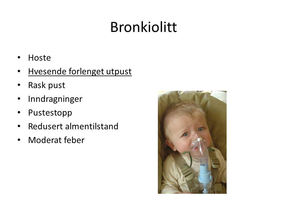 Bronkiolitt Hoste Hvesende forlenget utpust Rask pust Inndragninger