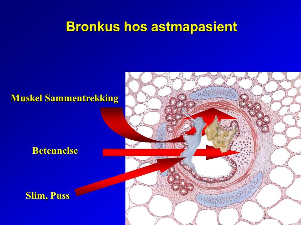 Bronkus hos astmapasient