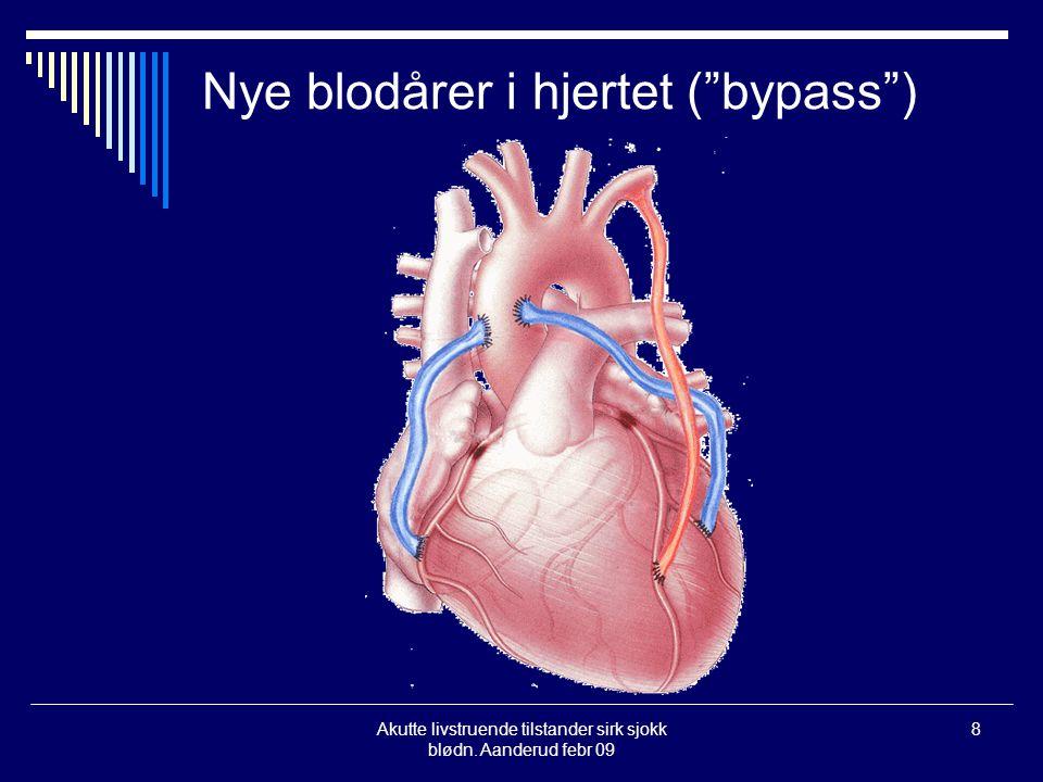 Nye blodårer i hjertet ( bypass )