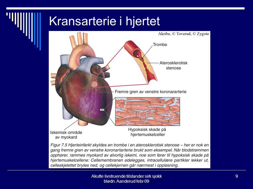 Kransarterie i hjertet
