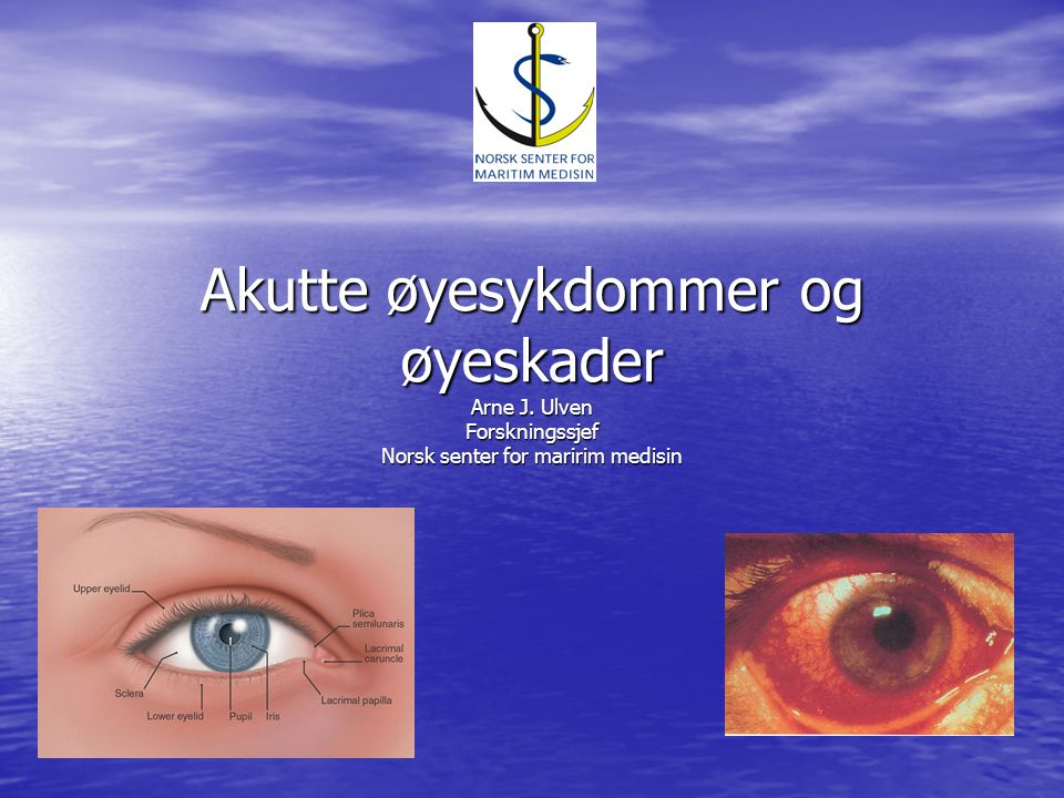 Akutte øyesykdommer og øyeskader Arne J