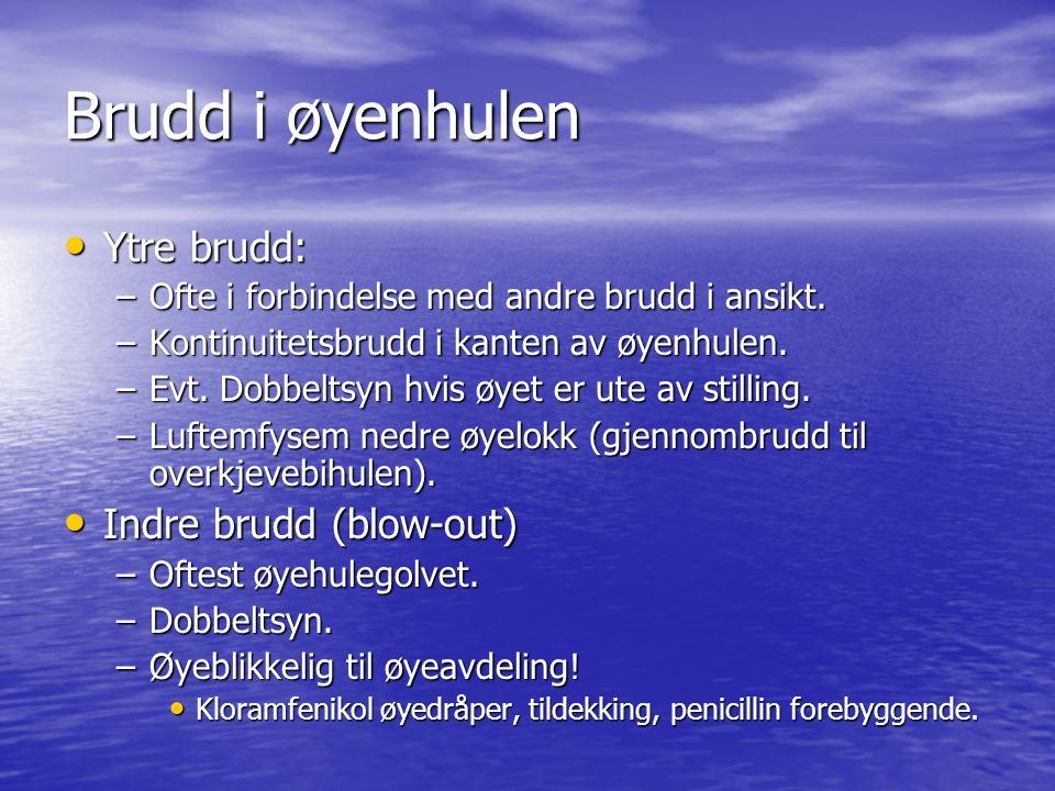 Brudd i øyenhulen Ytre brudd: Indre brudd (blow-out)