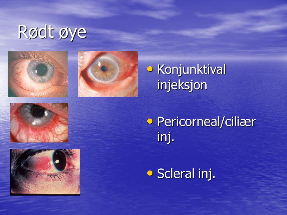 Rødt øye Konjunktival injeksjon Pericorneal/ciliær inj. Scleral inj.