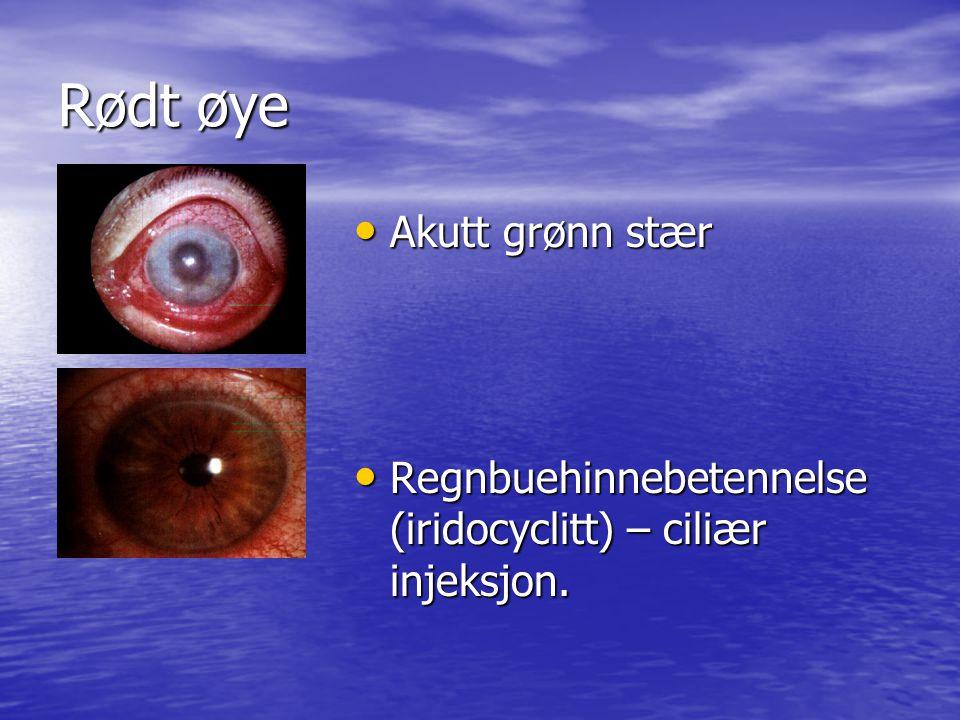 Rødt øye Akutt grønn stær