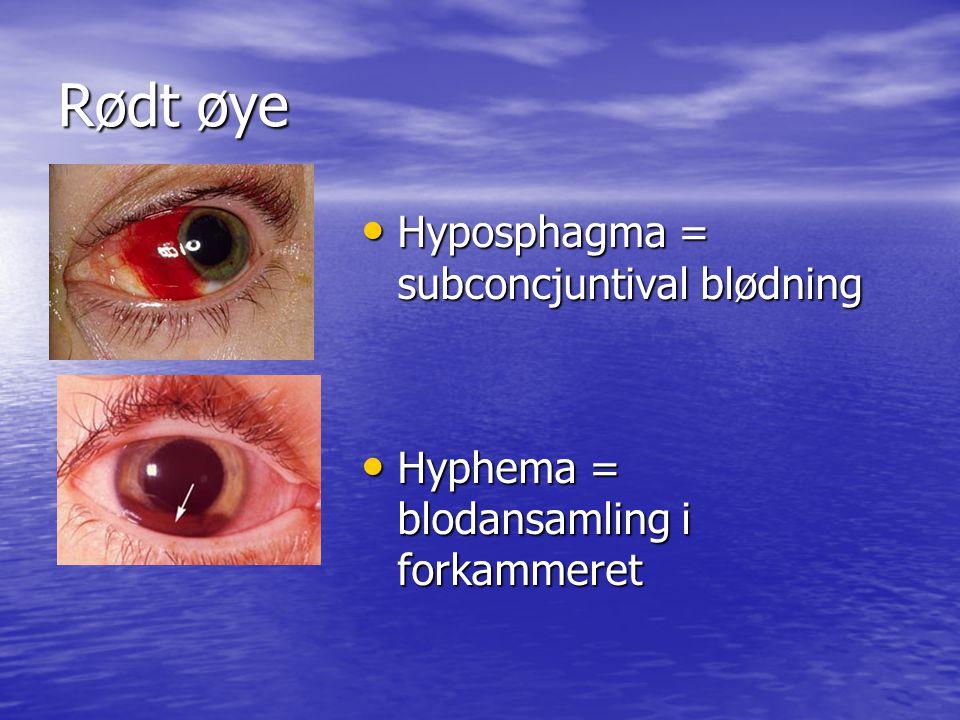 Rødt øye Hyposphagma = subconcjuntival blødning