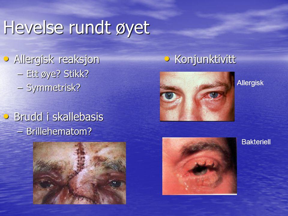 Hevelse rundt øyet Allergisk reaksjon Brudd i skallebasis