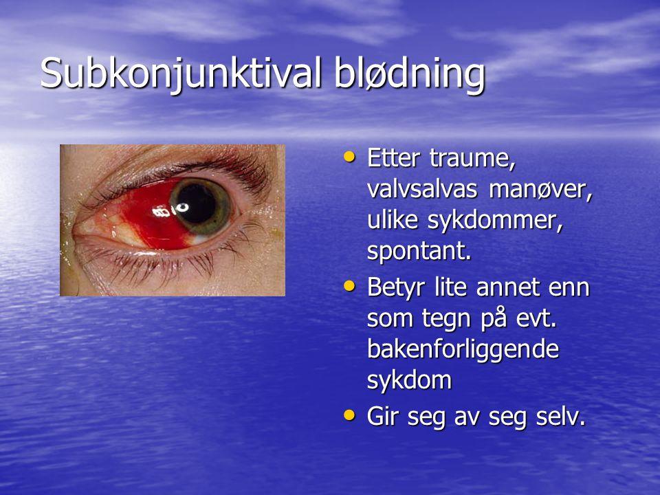 Subkonjunktival blødning