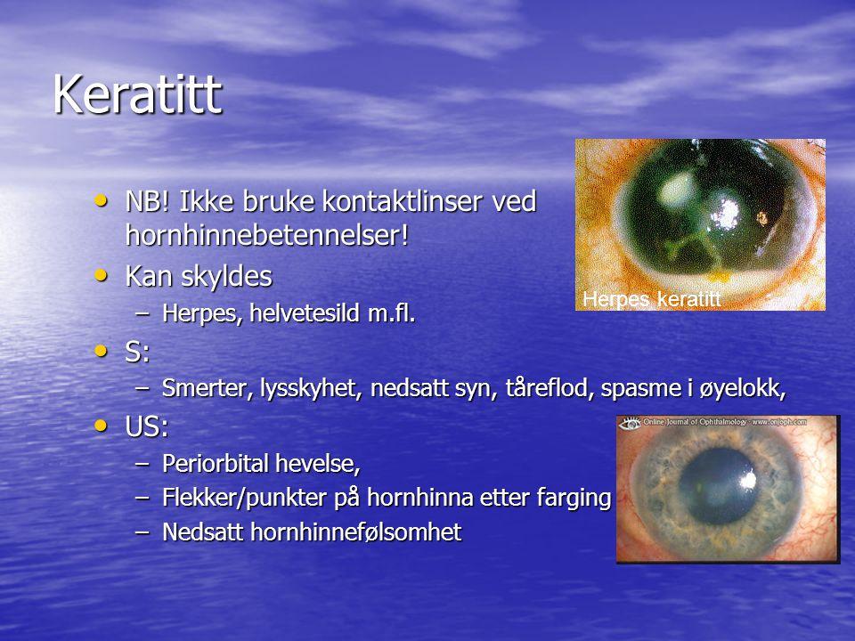 Keratitt NB! Ikke bruke kontaktlinser ved hornhinnebetennelser!