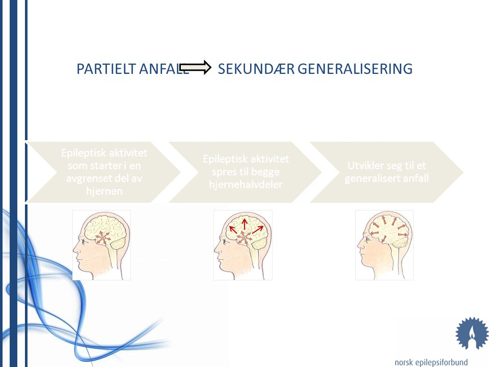 PARTIELT ANFALL SEKUNDÆR GENERALISERING