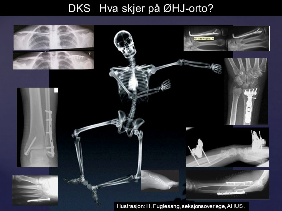 DKS – Hva skjer på ØHJ-orto