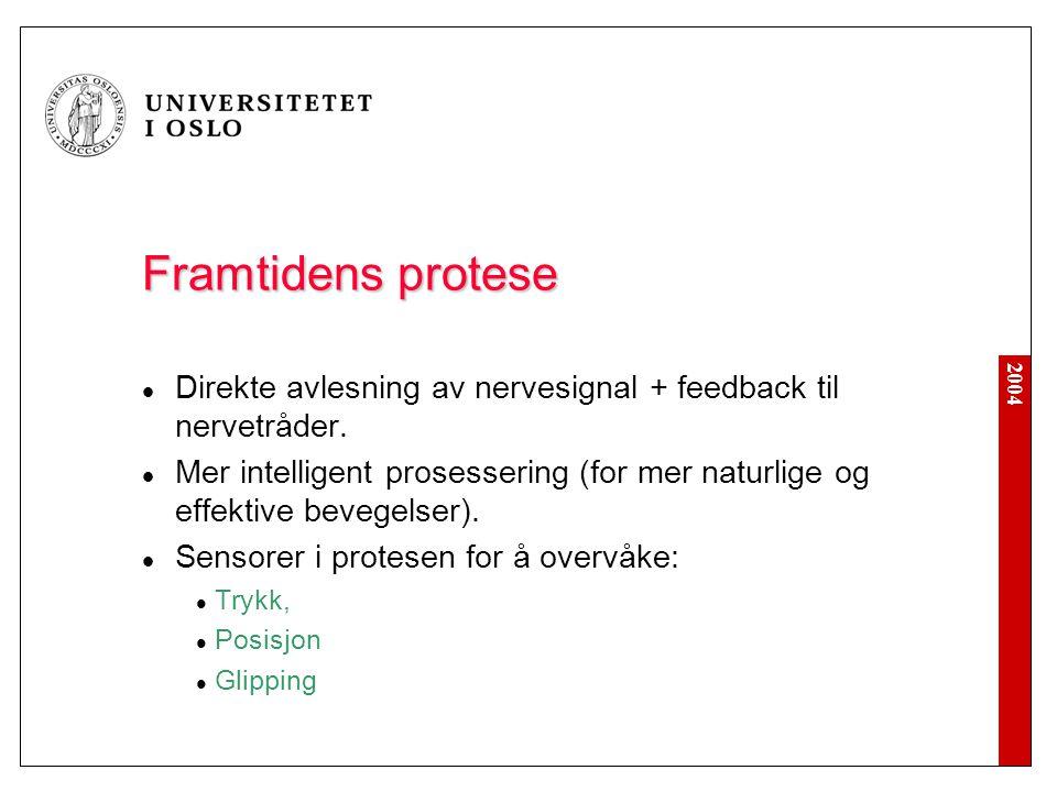 Framtidens protese Direkte avlesning av nervesignal + feedback til nervetråder.