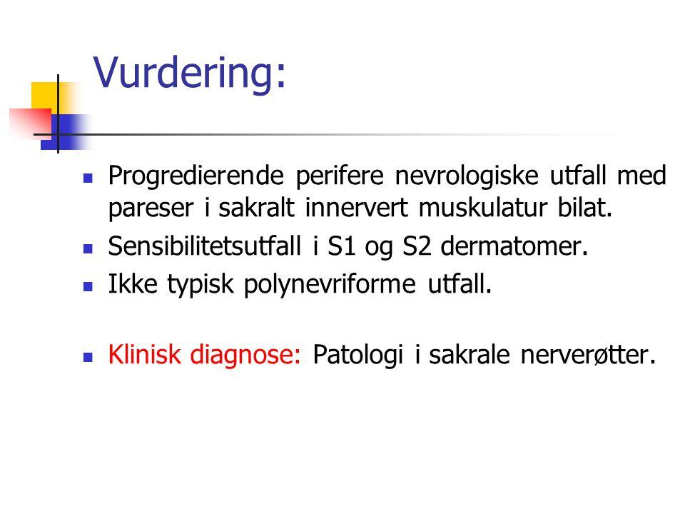 Vurdering: Progredierende perifere nevrologiske utfall med pareser i sakralt innervert muskulatur bilat.