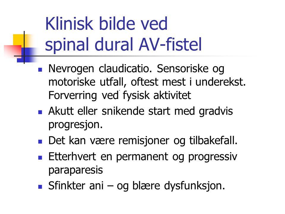 Klinisk bilde ved spinal dural AV-fistel