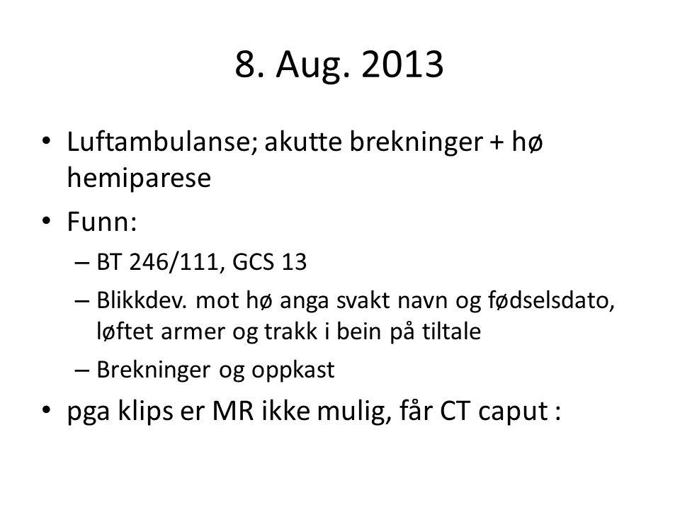 8. Aug. 2013 Luftambulanse; akutte brekninger + hø hemiparese Funn:
