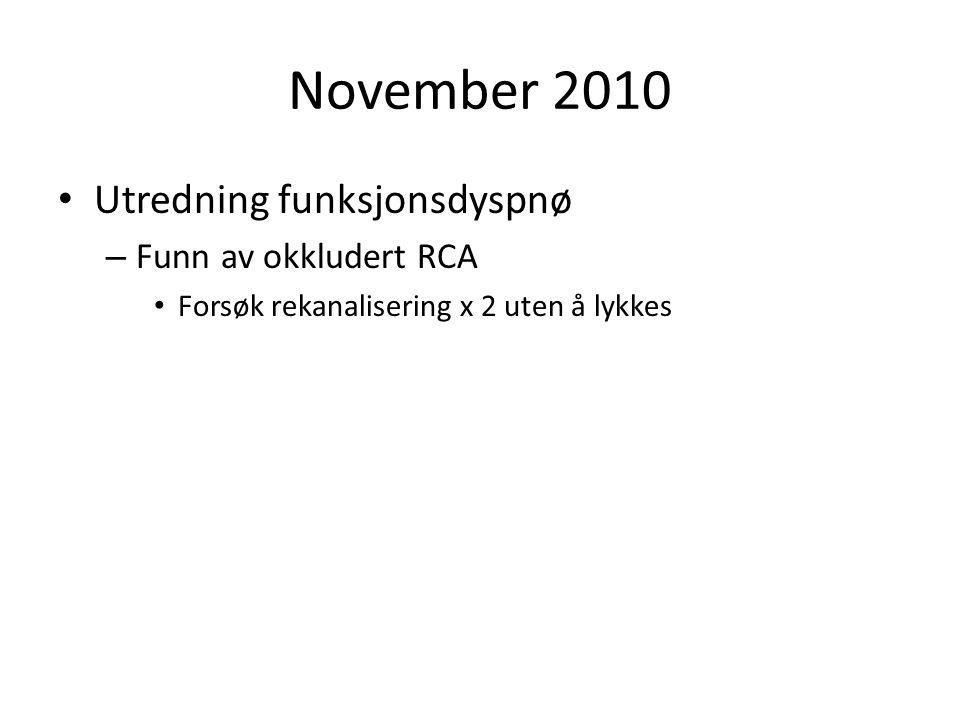 November 2010 Utredning funksjonsdyspnø Funn av okkludert RCA