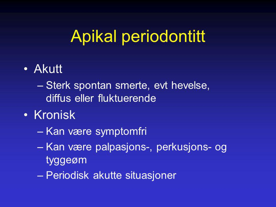 Apikal periodontitt Akutt Kronisk