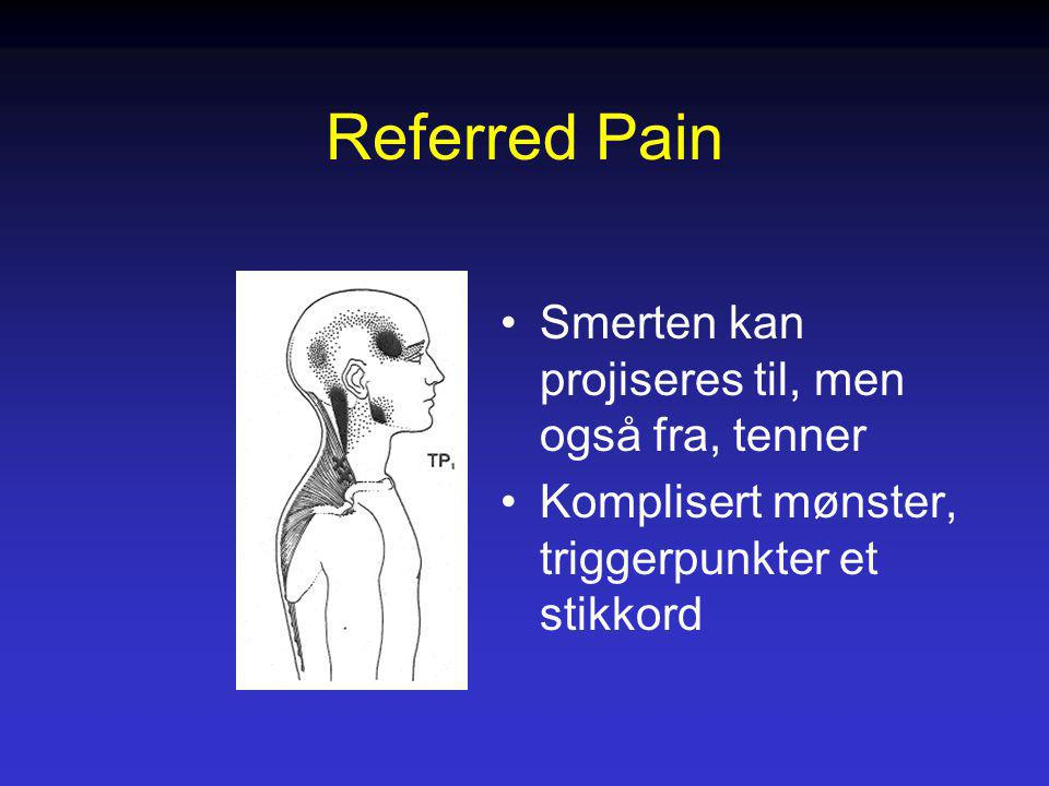 Referred Pain Smerten kan projiseres til, men også fra, tenner