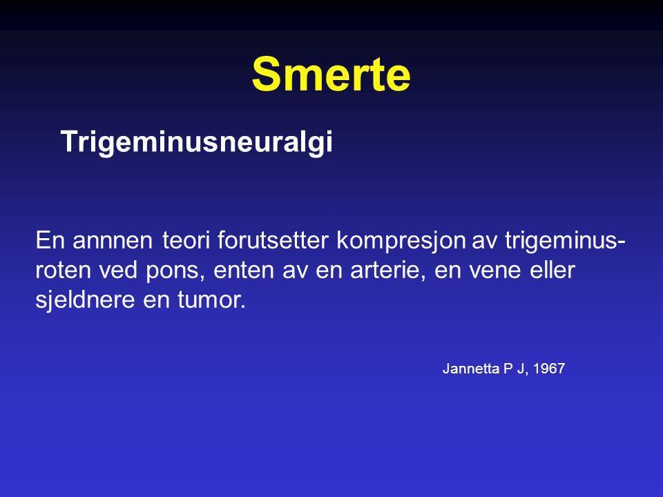 Smerte Trigeminusneuralgi