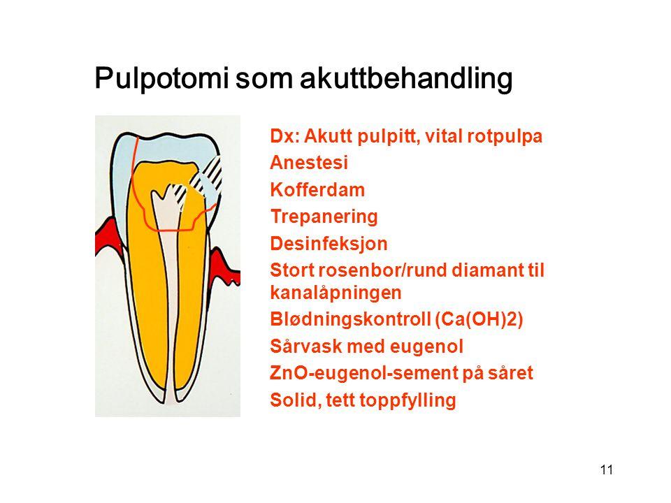 Pulpotomi som akuttbehandling