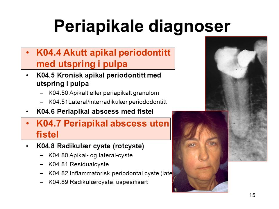 Periapikale diagnoser