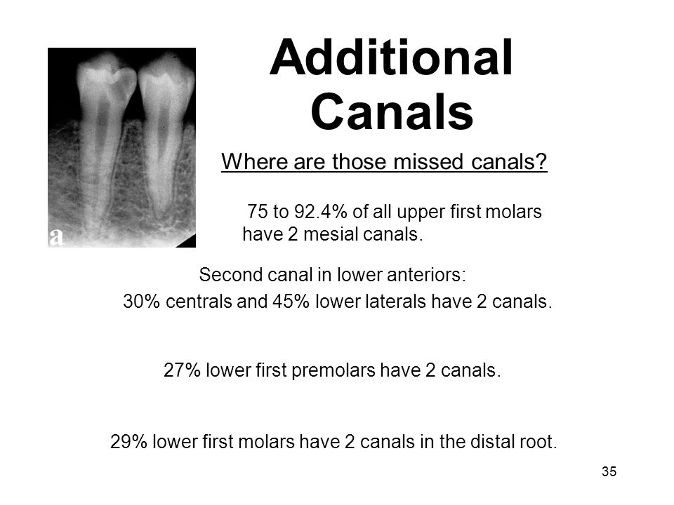 Additional Canals Where are those missed canals