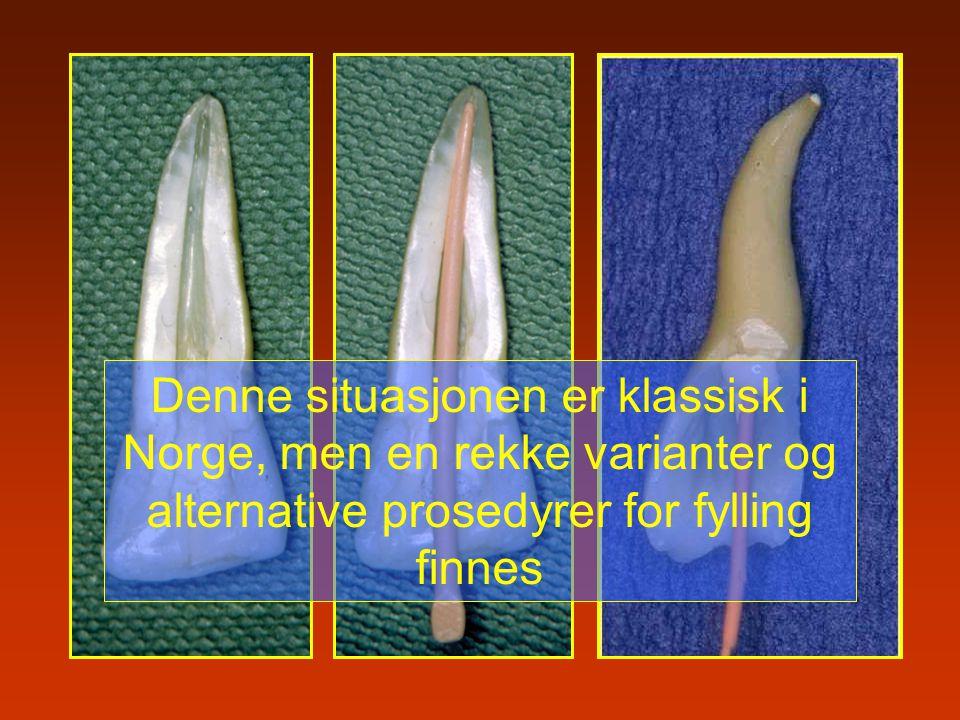 Denne situasjonen er klassisk i Norge, men en rekke varianter og alternative prosedyrer for fylling finnes