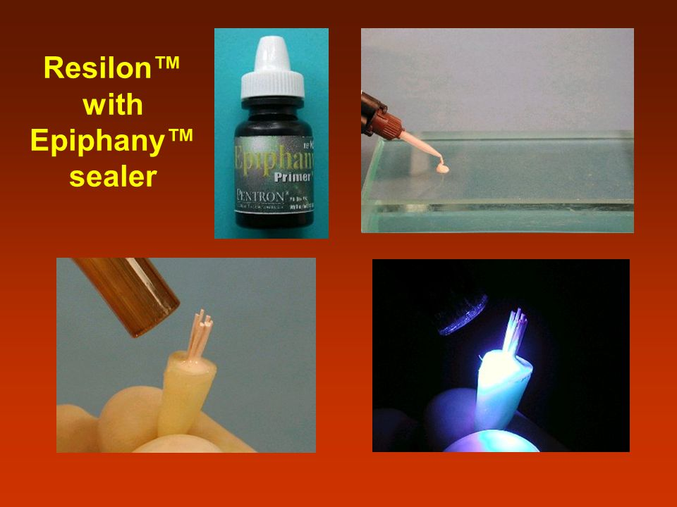 Resilon™ with Epiphany™ sealer