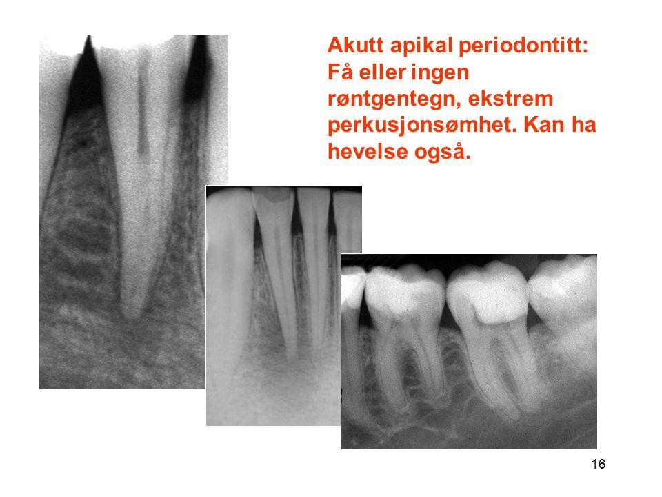 Akutt apikal periodontitt: Få eller ingen røntgentegn, ekstrem perkusjonsømhet. Kan ha hevelse også.
